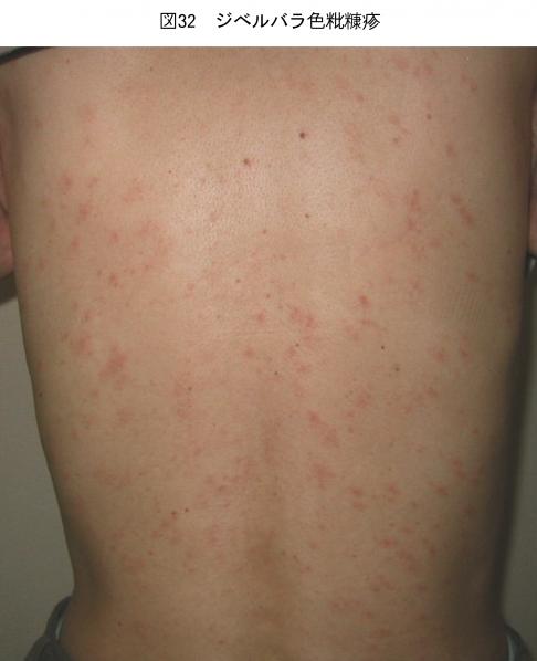 子どもの体に赤い楕円形の発疹?病気?これはいったい何?正体は